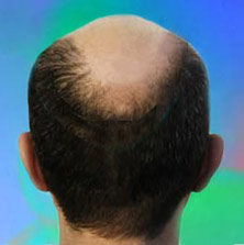 womens hair loss pictures